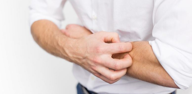 Treatment for Atopic Dermatitis