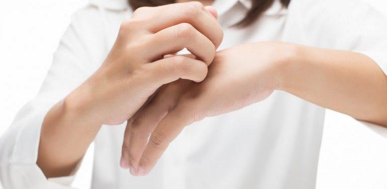 Calcineurin Inhibitors Atopic Dermatitis Treatments